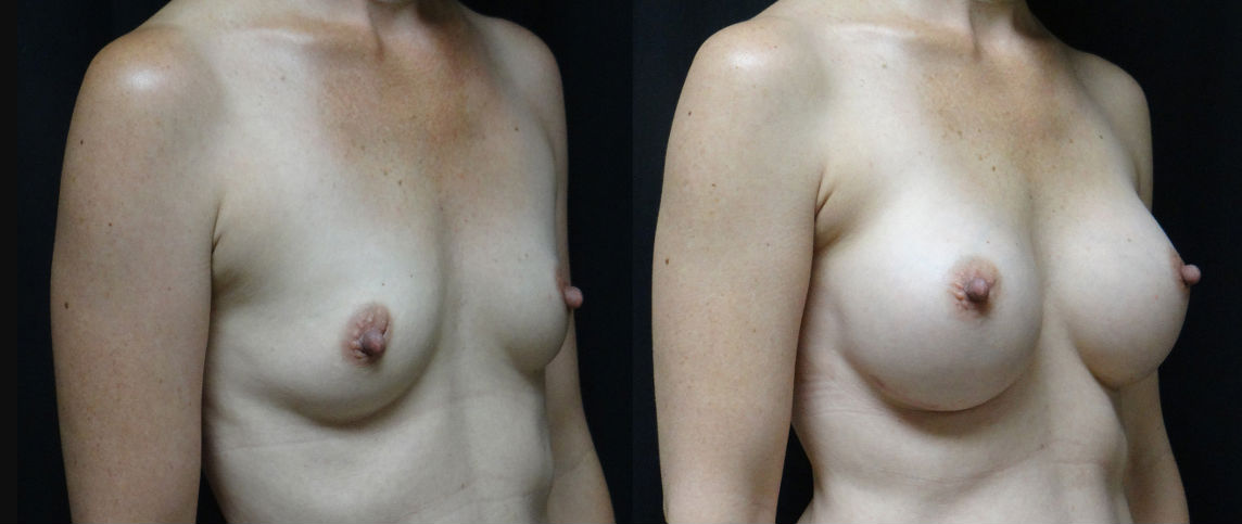 Pre-&-Post-Op-Breast-Augmentation-Virginia-Beach-Plastic-Surgeon-v3-Side-View