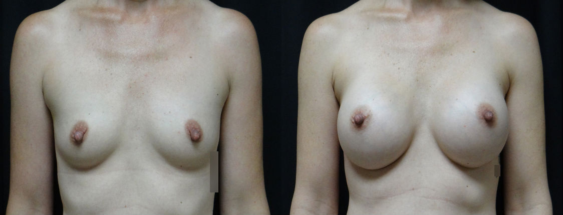 Pre-&-Post-Op-Breast-Augmentation-Virginia-Beach-Plastic-Surgeon-v3