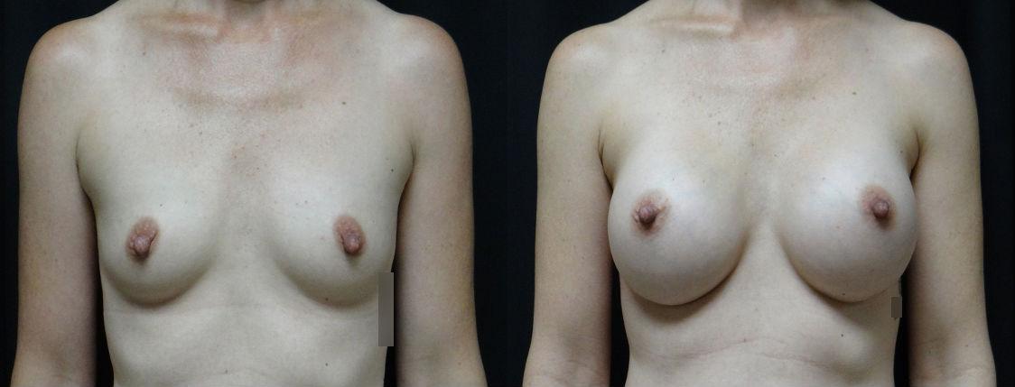 Pre-&-Post-Op-Breast-Augmentation-Virginia-Beach-Plastic-Surgeon-v3
