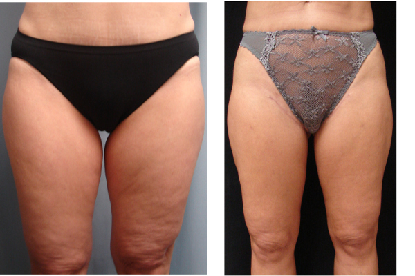 Thigh-lift-before-and-after-virginia-beach-plastic-surgeon-VA-101-JMD