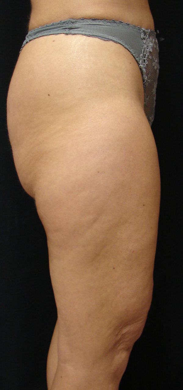 Thigh-lift-post-op-2-virginia-beach-plastic-surgeon-VA-101-JMD