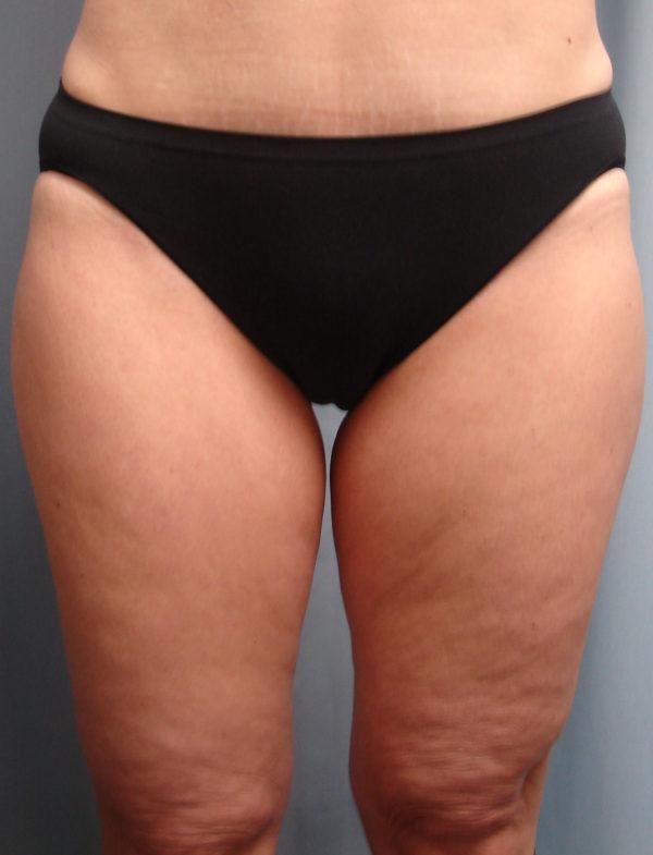 Thigh-lift-pre-op-1-virginia-beach-plastic-surgeon-VA-101-JMD