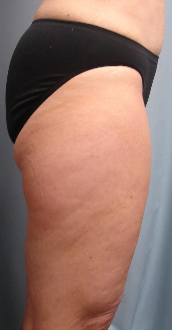 Thigh-lift-pre-op-2-virginia-beach-plastic-surgeon-VA-101-JMD