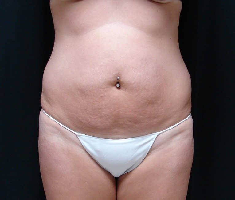 Tummy-Tuck-Abdominoplasty-Before-And-After-Virginia-Beach-VA-011-A