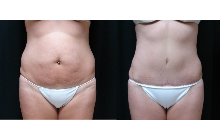 Tummy-Tuck-Abdominoplasty-Before-And-After-Virginia-Beach-VA-011-Cover