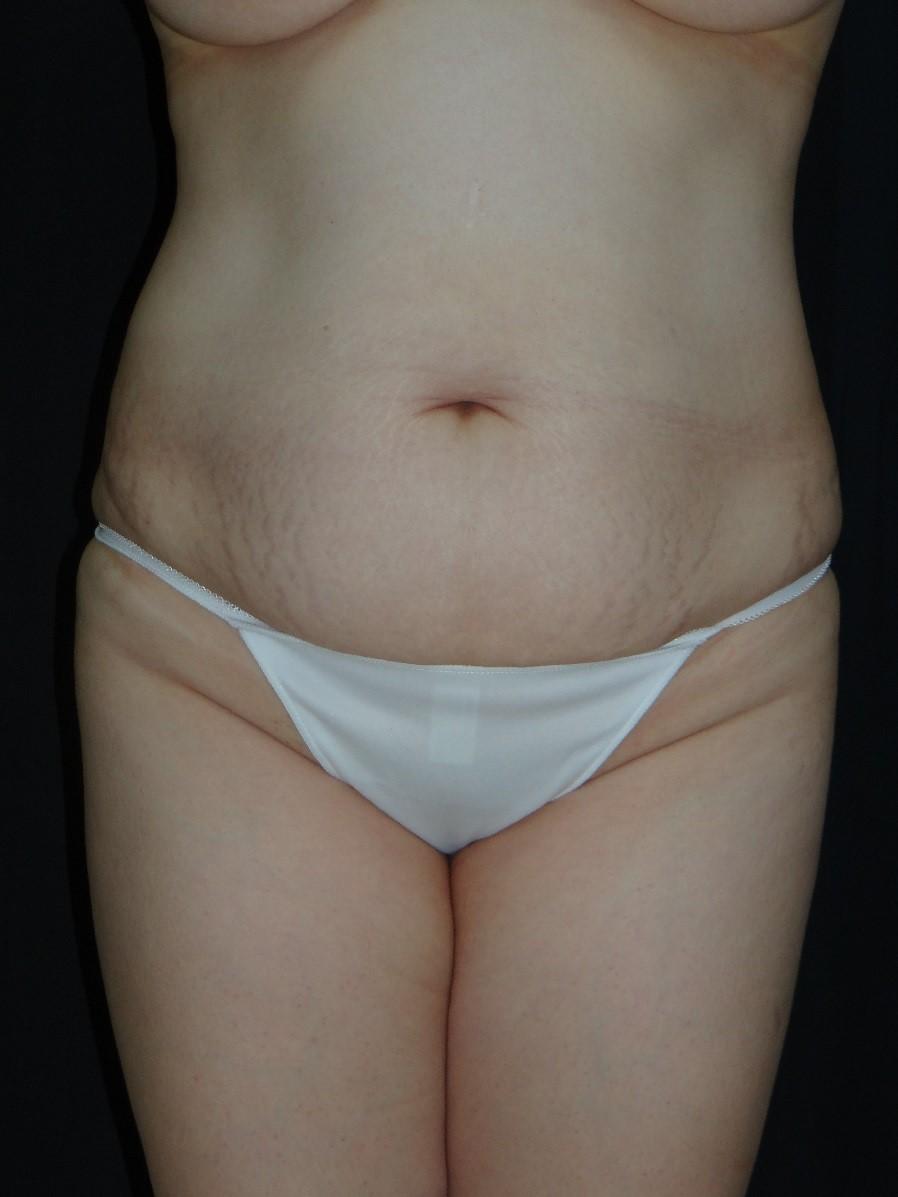 Tummy-Tuck-Abdominoplasty-Liposuction-Virginia-Beach-Plastic-Surgery-002-A
