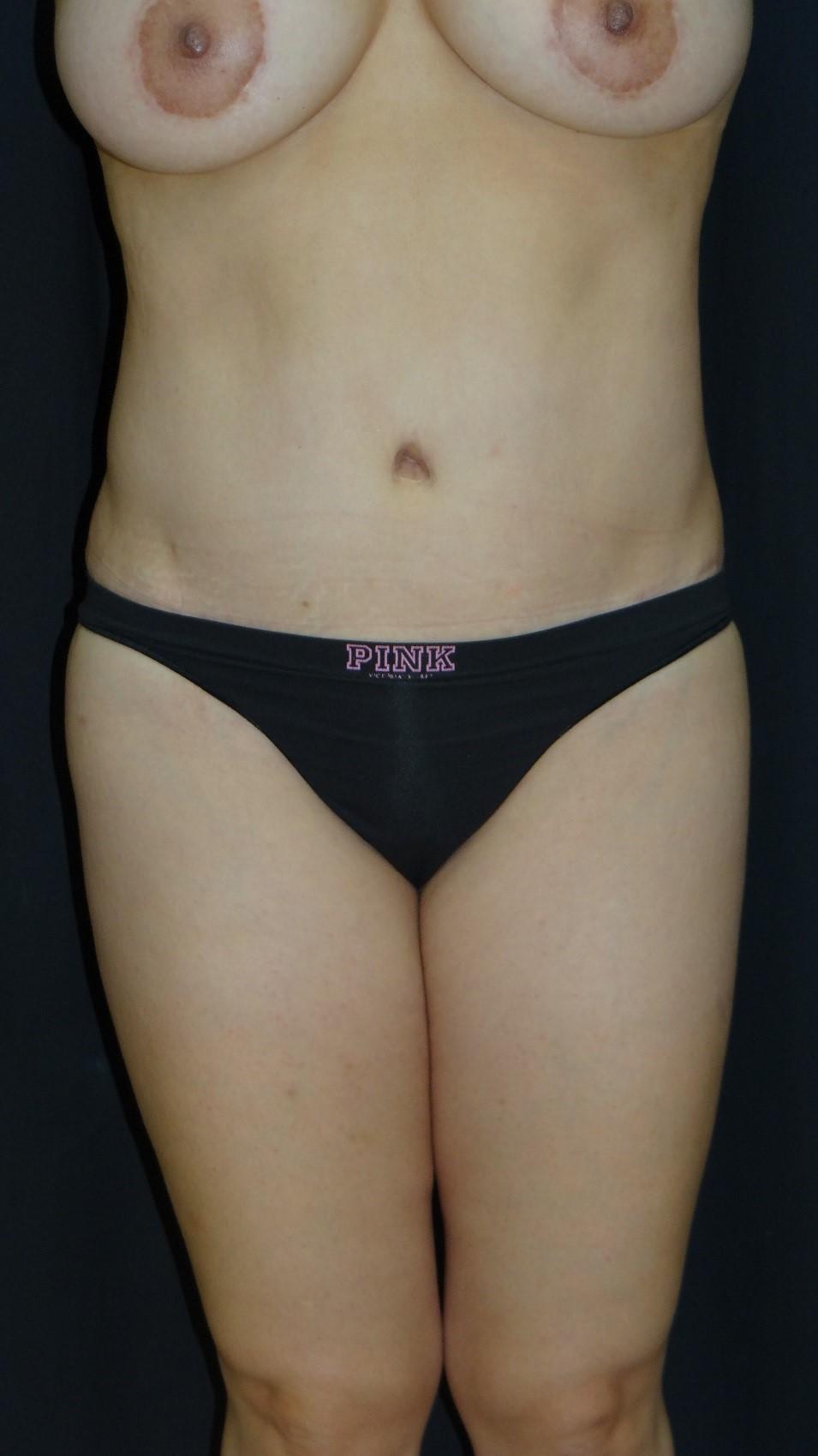 Tummy-Tuck-Abdominoplasty-Liposuction-Virginia-Beach-Plastic-Surgery-002-B