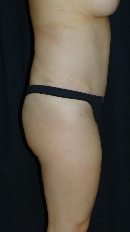 Tummy-Tuck-Abdominoplasty-Liposuction-Virginia-Beach-Plastic-Surgery-002-D