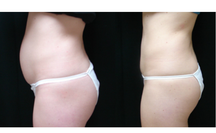 Tummy-Tuck-Before-And-After-Virginia-Beach-Plastic-Surgeon-VA-010-Cover