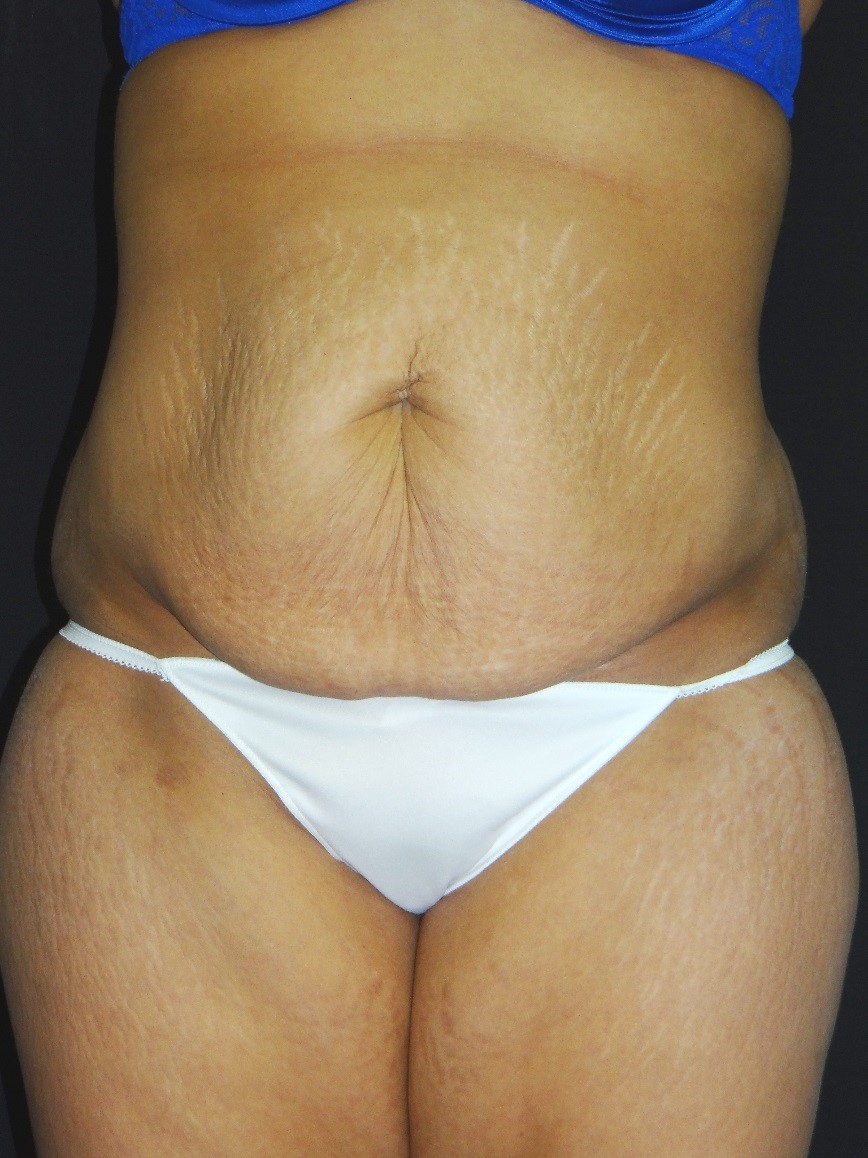 Tummy-Tuck-Liposuction-Before-And-After-Virginia-Beach-Plastic-Surgery-001-A