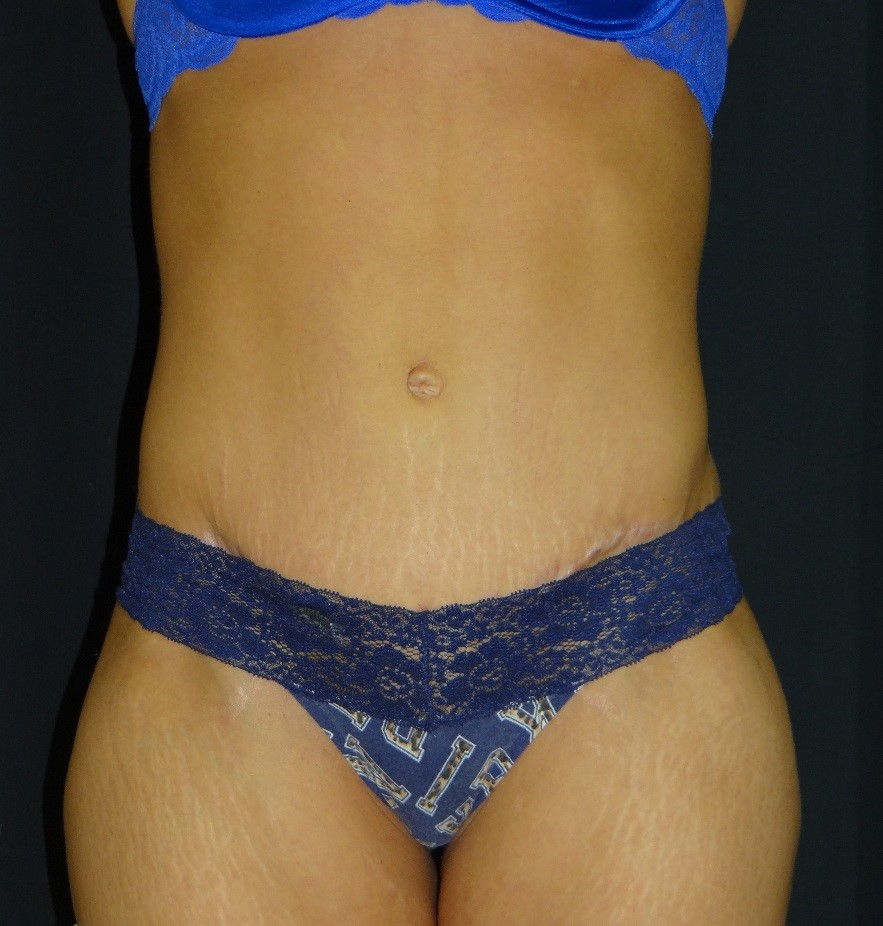Tummy-Tuck-Liposuction-Before-And-After-Virginia-Beach-Plastic-Surgery-001-B