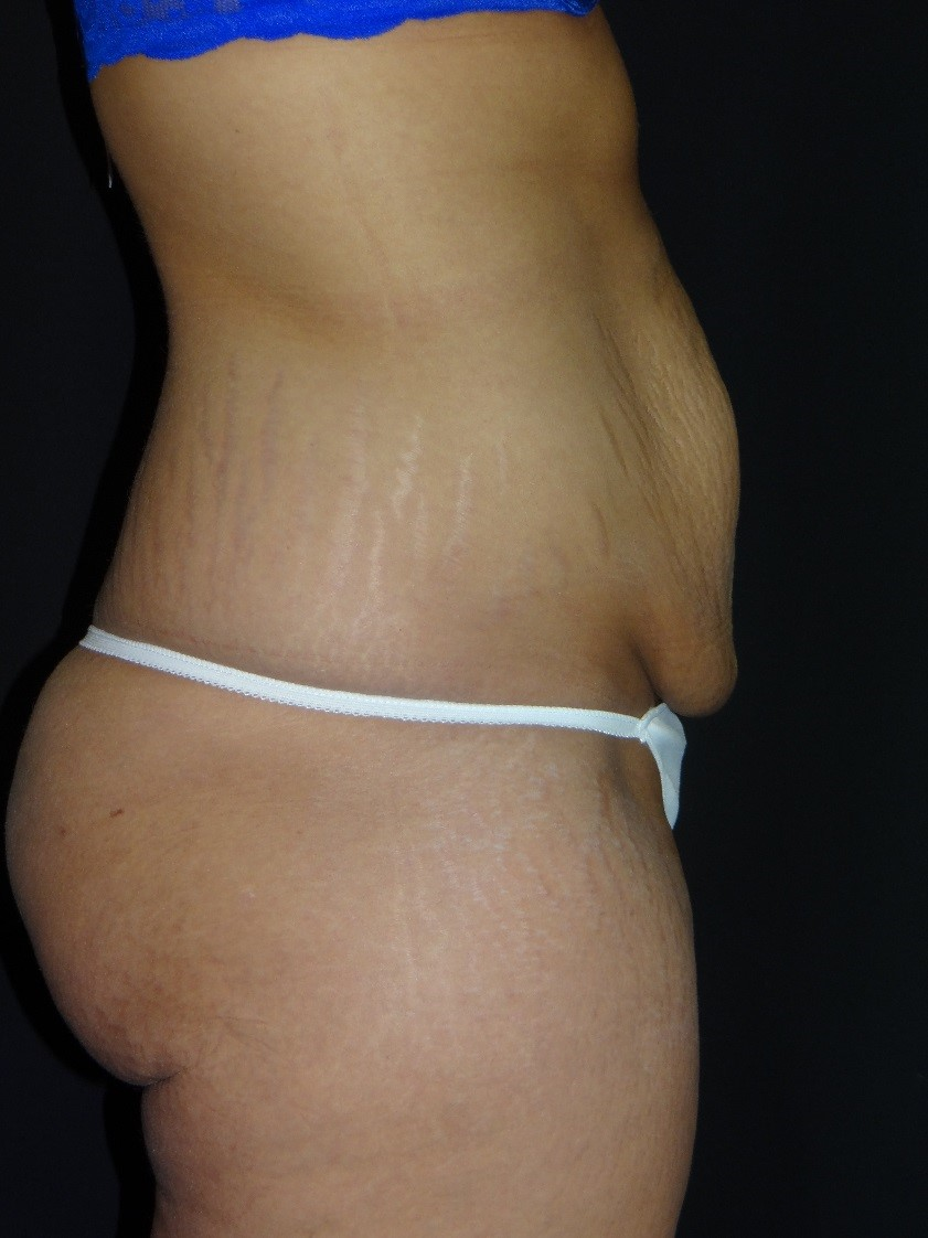 Tummy-Tuck-Liposuction-Before-And-After-Virginia-Beach-Plastic-Surgery-001-C