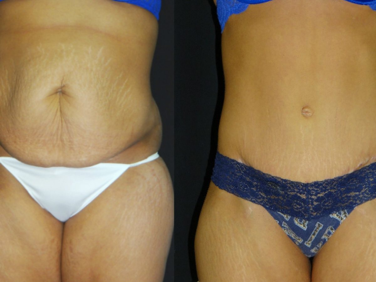 Liposuction Skin Removal To Reduce Waist Size And Excess Skin Associates In Plastic Surgery