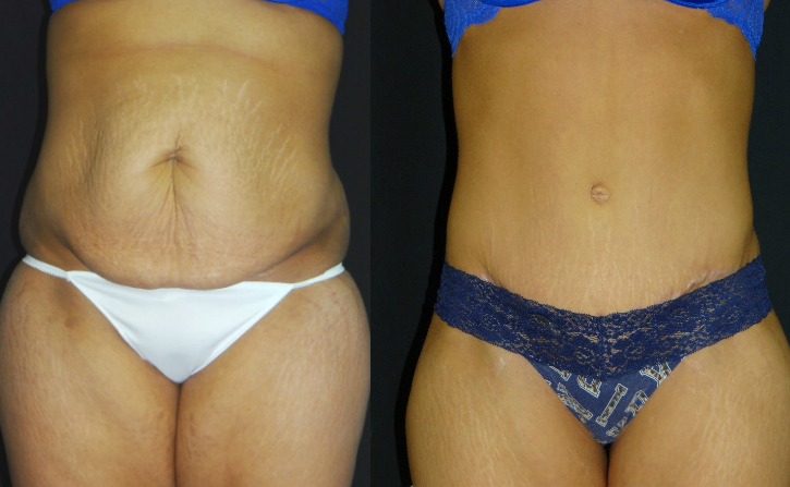 Tummy-Tuck-Liposuction-Before-And-After-Virginia-Beach-Plastic-Surgery-001-Cover