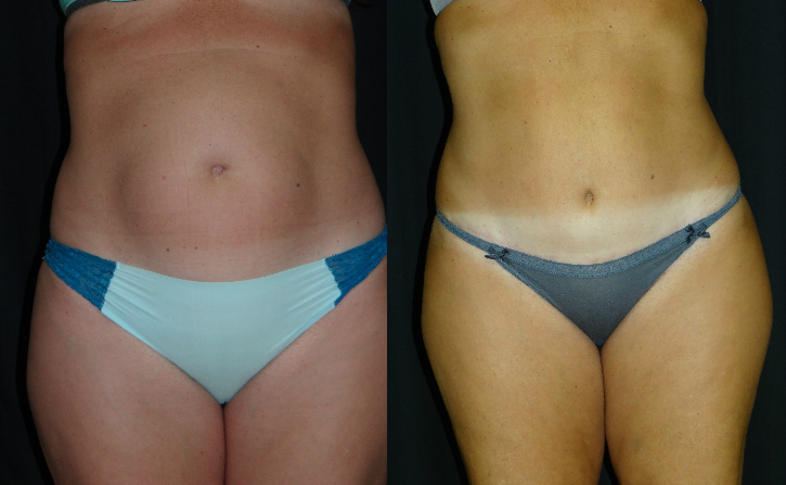 Tummy-Tuck-Virginia-Beach-Plastic-Surgeon-VA-004-Cover