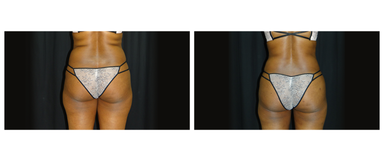 abdominoplasty-before-and-after-1-virginia-beach-plastic-surgeon-VA-0056-denk