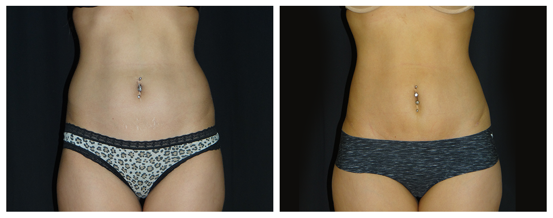 abdominoplasty-before-and-after-1-virginia-beach-plastic-surgeon-VA-0057-denk