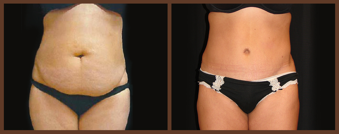 abdominoplasty-before-and-after-1-virginia-beach-plastic-surgeon-VA-0058-denk