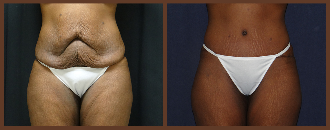 abdominoplasty-before-and-after-1-virginia-beach-plastic-surgeon-VA-0059-denk