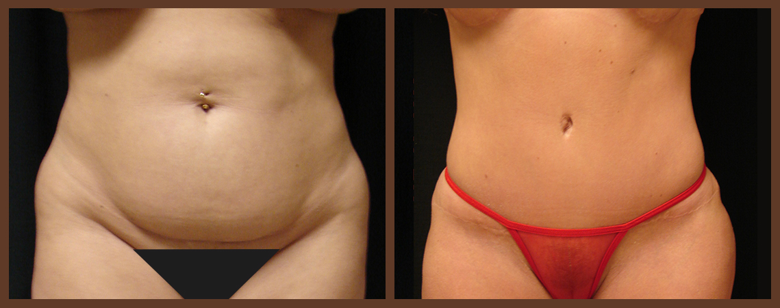 abdominoplasty-before-and-after-1-virginia-beach-plastic-surgeon-VA-0061-denk