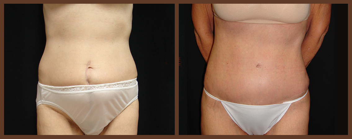 abdominoplasty-before-and-after-1-virginia-beach-plastic-surgeon-VA-0062-denk