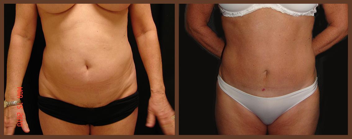 abdominoplasty-before-and-after-1-virginia-beach-plastic-surgeon-VA-0063-denk