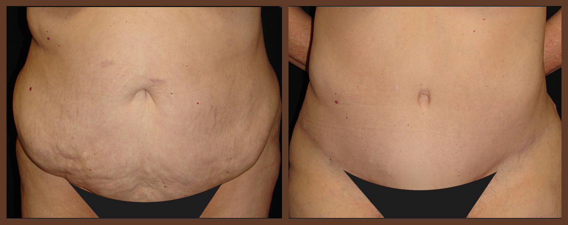 abdominoplasty-before-and-after-1-virginia-beach-plastic-surgeon-VA-0065-denk