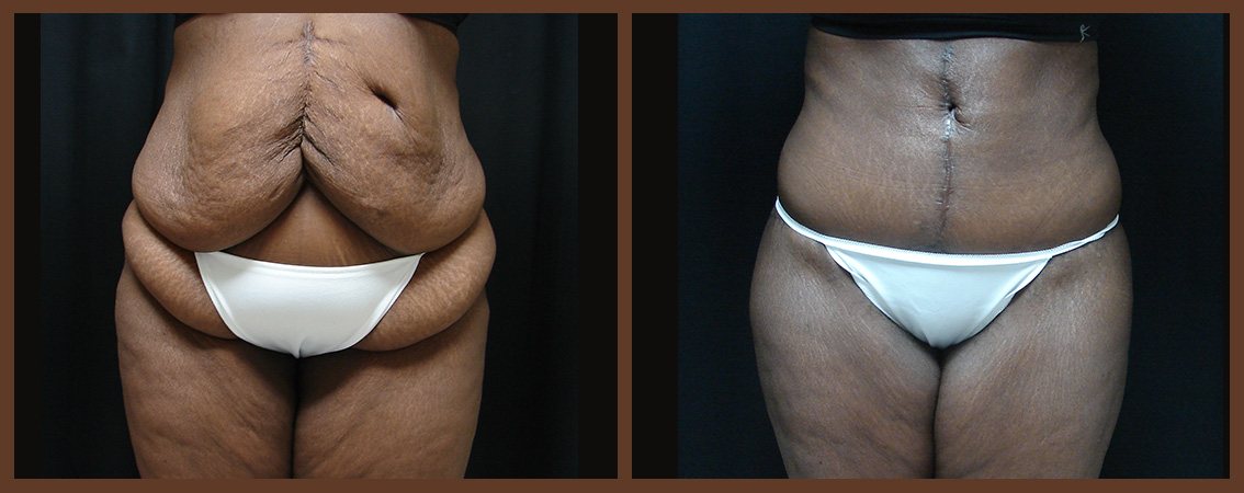 abdominoplasty-before-and-after-1-virginia-beach-plastic-surgeon-VA-0067-JSA