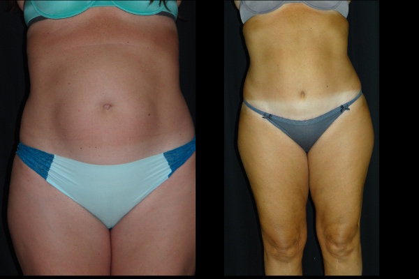 abdominoplasty-before-and-after-1-virginia-beach-plastic-surgeon-VA-101-Denk
