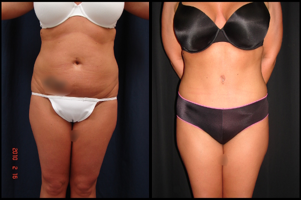 abdominoplasty-before-and-after-1-virginia-beach-plastic-surgeon-VA-101-JSJ