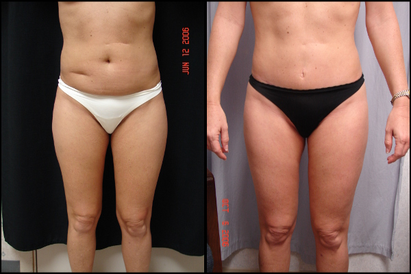 abdominoplasty-before-and-after-1-virginia-beach-plastic-surgeon-VA-102-Denk