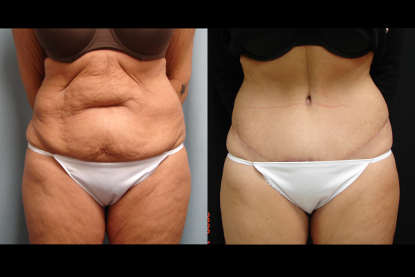 abdominoplasty-before-and-after-1-virginia-beach-plastic-surgeon-VA-102-JSJ