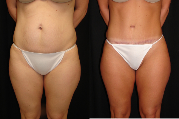 abdominoplasty-before-and-after-1-virginia-beach-plastic-surgeon-VA-103-Denk