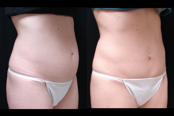 abdominoplasty-before-and-after-1-virginia-beach-plastic-surgeon-VA-103-JSA