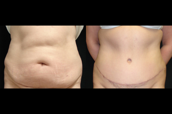 abdominoplasty-before-and-after-1-virginia-beach-plastic-surgeon-VA-103-JSJ