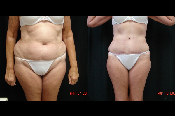 abdominoplasty-before-and-after-1-virginia-beach-plastic-surgeon-VA-104-Denk