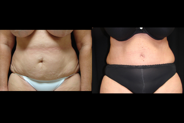 abdominoplasty-before-and-after-1-virginia-beach-plastic-surgeon-VA-104-JSJ