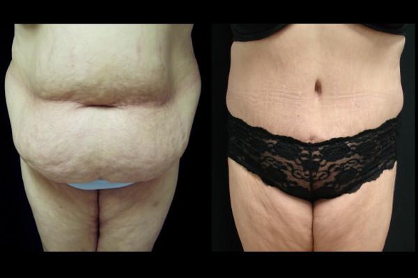 abdominoplasty-before-and-after-1-virginia-beach-plastic-surgeon-VA-105-Denk
