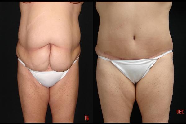 abdominoplasty-before-and-after-1-virginia-beach-plastic-surgeon-VA-105-JSA
