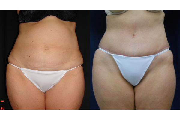 abdominoplasty-before-and-after-1-virginia-beach-plastic-surgeon-VA-105-JSJ