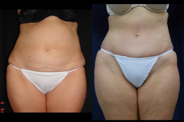 abdominoplasty-before-and-after-1-virginia-beach-plastic-surgeon-VA-105-JSJ