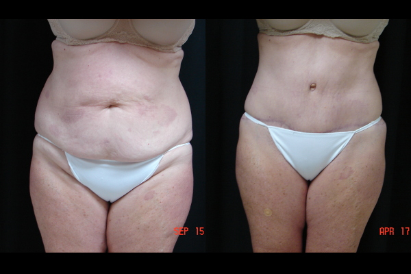 abdominoplasty-before-and-after-1-virginia-beach-plastic-surgeon-VA-106-JSA