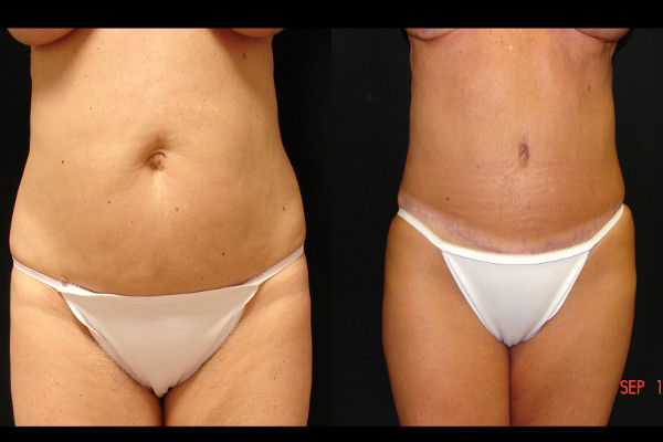 abdominoplasty-before-and-after-1-virginia-beach-plastic-surgeon-VA-107-JSA