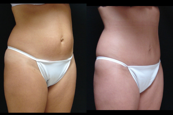 abdominoplasty-before-and-after-1-virginia-beach-plastic-surgeon-VA-108-JSA