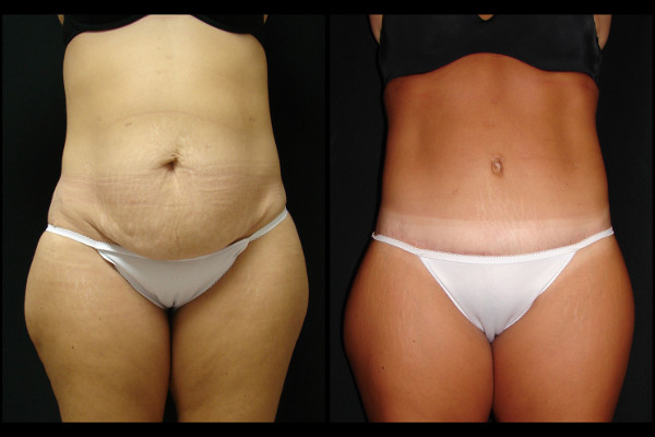 abdominoplasty-before-and-after-1-virginia-beach-plastic-surgeon-VA-109-JSA