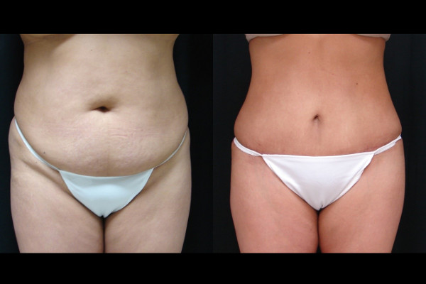 abdominoplasty-before-and-after-1-virginia-beach-plastic-surgeon-VA-111-JSA