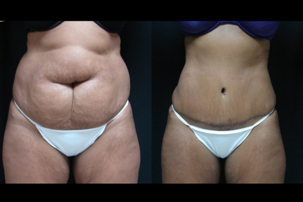 abdominoplasty-before-and-after-1-virginia-beach-plastic-surgeon-VA-112-JSA
