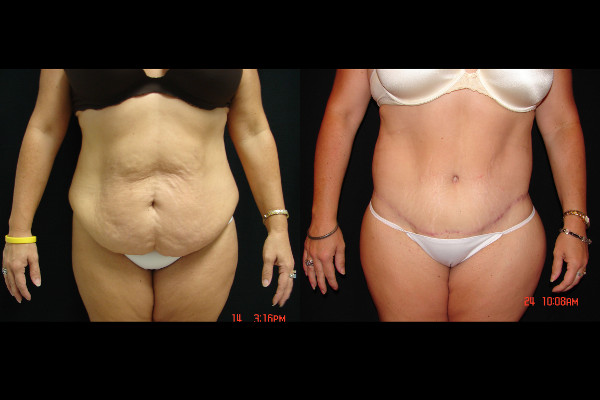 abdominoplasty-before-and-after-1-virginia-beach-plastic-surgeon-VA-113-JSA