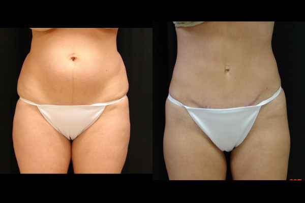 abdominoplasty-before-and-after-1-virginia-beach-plastic-surgeon-VA-117-JSA