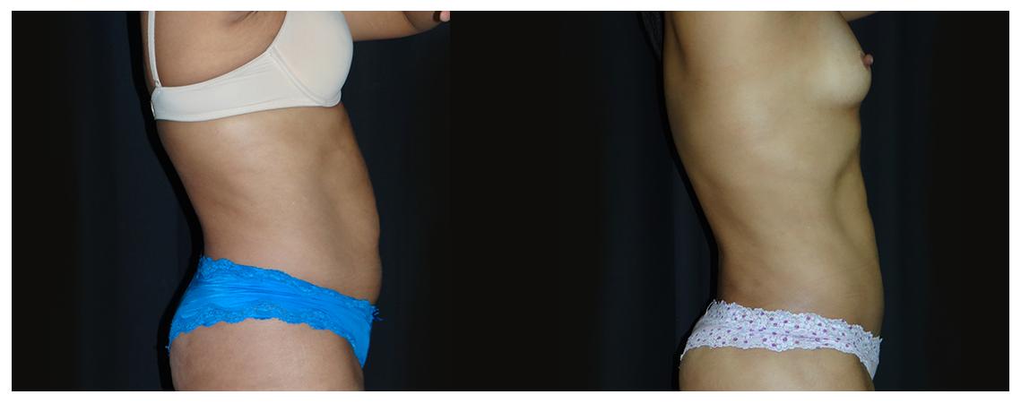 abdominoplasty-before-and-after-2-virginia-beach-plastic-surgeon-VA-0055-denk